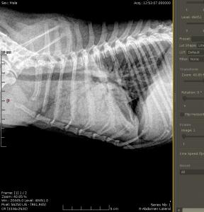 Fracturas huesos