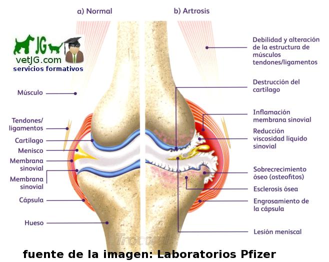 la artrosis de rodilla